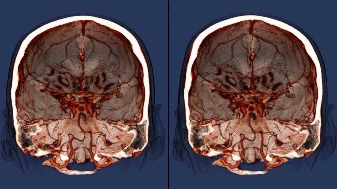 Вчені знайшли спосіб захиститися від раку мозку