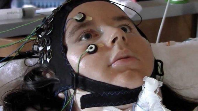 Нейроінтерфейс навчили мови «замкнених» людей