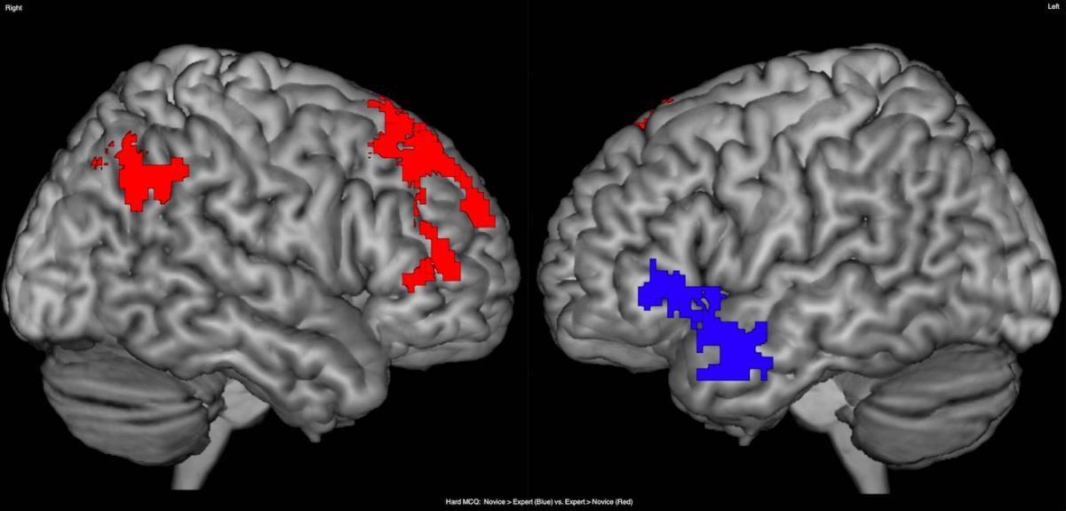 Названо області мозку, пов'язані з жіночим оргазмом